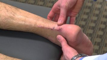 New-Procedure-Helps-Achilles-Tendon-Heal-Faster