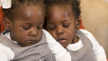 Apio (left) and Acen (right) Akello were once conjoined, but after their surgery at Nationwide Children`s Hospital, they can now choose when to be together and apart.
