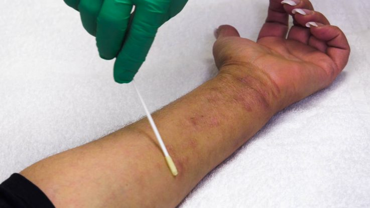 A new clinical trial at National Jewish Health uses lotion containing beneficial bacteria to fight the harmful bacteria on the skin of eczema patients. Researchers hope it will lead to a long-term solution for those suffering with the painful, itchy skin associated with the disease.