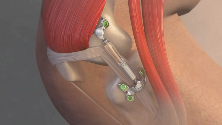 The Calypso Knee System, developed by Moximed, Inc., is designed to act as a shock absorber for the inner knee. A clinical trial is examining how the system may relieve pain and slow the progression of osteoarthritis.